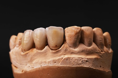 Dental impression. Isolated on a black background. photo