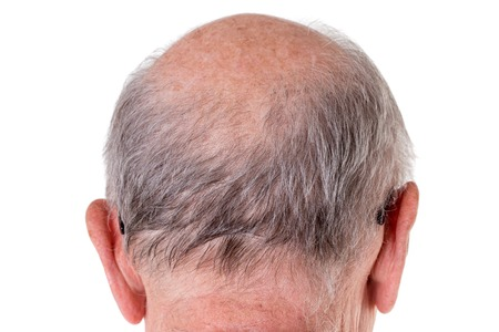 bald head: Back of the bald head of old man. Back view. Isolated on a white background. Stock Photo