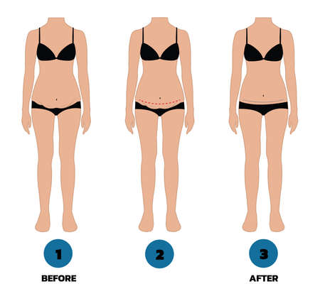 tummy tuck surgery or abdominoplasty vector Illustration