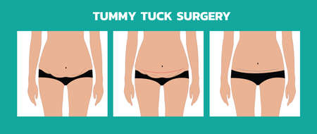 tummy tuck surgery or abdominoplasty vector  イラスト・ベクター素材