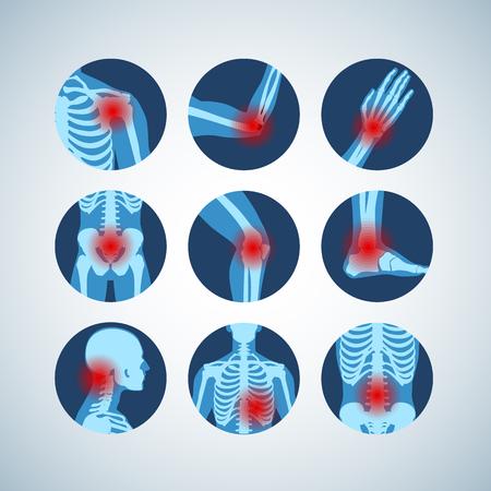 Ensemble médical de rhumatismes ou de troubles rhumatismaux. Syndrome de douleur articulaire arthritique. Différentes parties du corps avec des anneaux douloureux sur la main, la jambe et les pieds, la colonne vertébrale, l'aviron, le bassin. Éléments d'infographie vectorielle en rhumatologie
