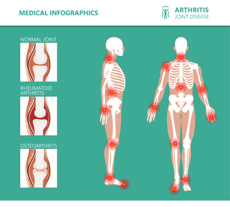 Medizinische Poster zu Rheumatismus oder rheumatischen Erkrankungen. Arthritis-Gelenkschmerzsyndrom. Größere rheumatische Erkrankungen wie Rücken-, Nackenschmerzen, Capsulitis oder rheumatoide Arthritis. Rheumatologie-Vektor-Infografiken Vektorgrafik
