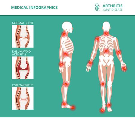 Poster medici di reumatismi o disturbi reumatici. Sindrome del dolore articolare da artrite. Principali disturbi reumatici come schiena, dolore al collo, capsulite o artrite reumatoide. Infografica vettoriale di reumatologia Vettoriali