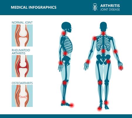 Affiches médicales sur les rhumatismes ou les troubles rhumatismaux. Syndrome de douleur articulaire arthritique. Troubles rhumatismaux majeurs tels que douleurs au dos, au cou, capsulite ou polyarthrite rhumatoïde. Infographie vectorielle de rhumatologie