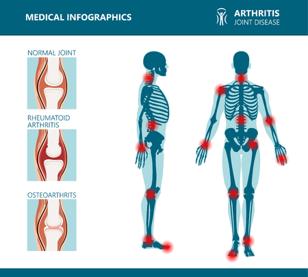 Rheumatism or rheumatic disorder medical posters. Arthritis joint pain syndrome. Major rheumatic disorders as back, neck pain, Capsulitis or rheumatoid arthritis. Rheumatology vector infographics Stock Illustratie