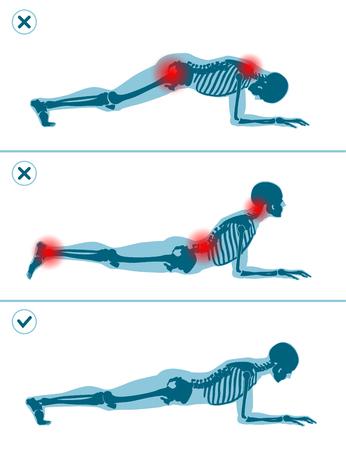 Verkeerde en juiste plankpositie. Juiste en verkeerde uitvoeringstechniek van sportoefeningen. Veelgemaakte fouten bij sporttraining. Man staande op ellebogen.