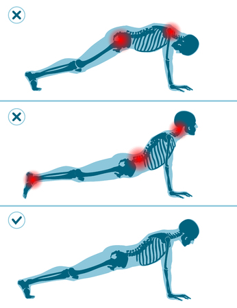 Wrong and correct plank pose. Right and wrong execution technique of sport exercise. Common mistakes in sport workout. Man standing on hands before push ups.