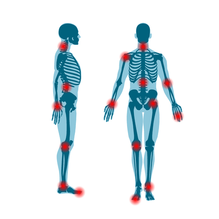 Human skeleton front and side view with pain rings on joints. Men anatomy illustration on white background with a body silhouette. Vector illustration