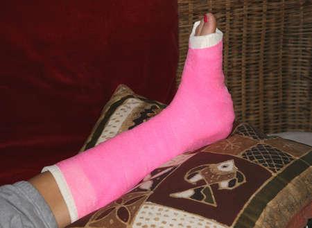 incapacitated: Broken leg with pink bandage and painted toenail Stock Photo