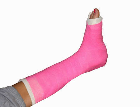 Broken leg with pink bandage and painted toenail photo