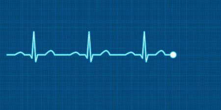 electrocardiograma: Ilustraci�n Vectores
