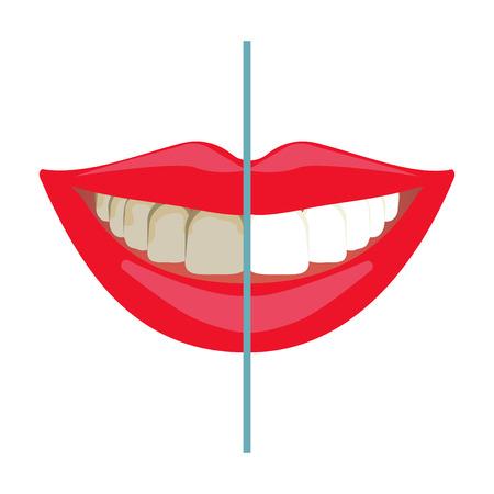 branqueamento: Clareamento dos dentes antes e depois de resultados. O clareamento dental, dentes sorriso, a compara��o do tratamento dent�rio