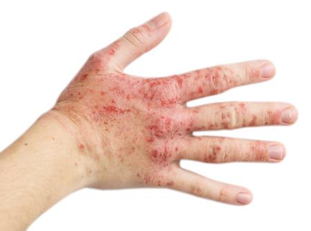 rash: El problema con muchas personas - eczema en mano. Fondo aislado Foto de archivo