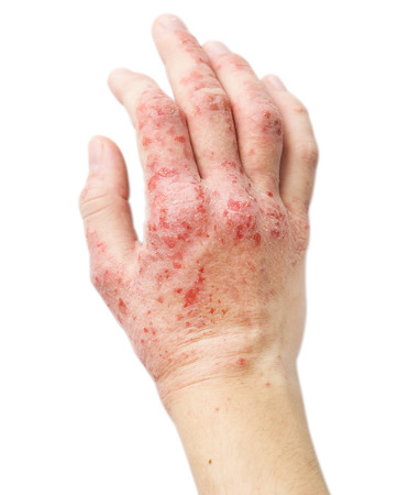 mucha gente: El problema con muchas personas - eczema en mano. Fondo aislado Foto de archivo