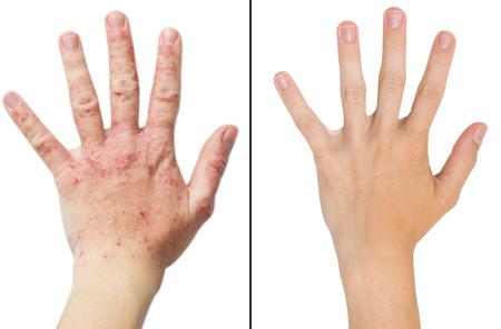 Reale Foto Mädchen an der Hand, der Patient mit Neurodermitis vor und nach der Behandlung. Isolierte weißem Hintergrund