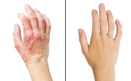 Real photo meisje de hand, de patiënt met eczeem voor en na behandeling. Geïsoleerde witte achtergrond Stockfoto