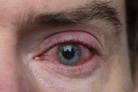 Close up of a severe bloodshot eye. Blepharitis, Conjunctivitis condition Stock Photo