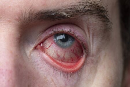 Close up of a severe bloodshot eye. Blepharitis, Conjunctivitis condition Фото со стока