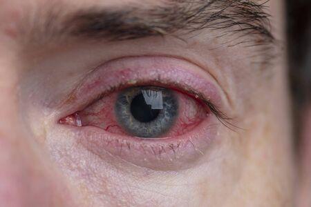 Close up of a severe bloodshot eye. Blepharitis, Conjunctivitis condition Stock fotó