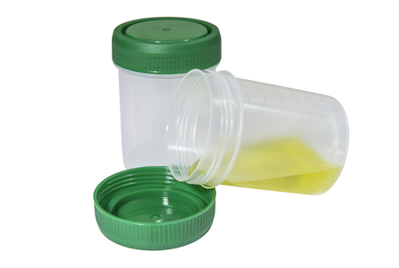 Medical containers for biological fluids. Healthcare and medicine. Medical equipment.