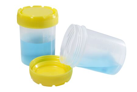 Plastic containers for collection of medical samples. Healthcare and medicine. Medical equipment. Stok Fotoğraf