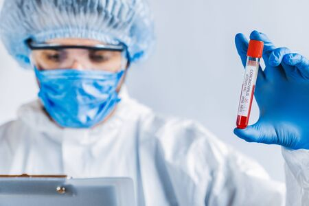 Epidemiologist holding test blood sample. Virus test and research concept with focus on tube