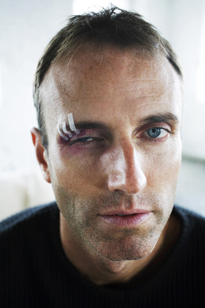 Man with swollen eye photo