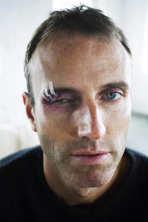 swollen: Man with swollen eye Stock Photo