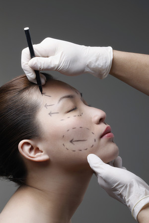 Woman has her face drawn around her eye in preparation for cosmetic surgery photo