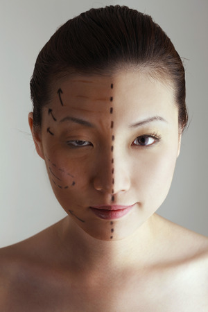 cosmetic surgery: Comparison of a womans face before and after cosmetic surgery