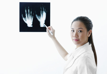 Female doctor pointing at hand x-ray photo