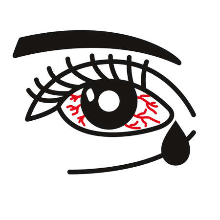 Inflammated eye Conjunctivitis or pink eye