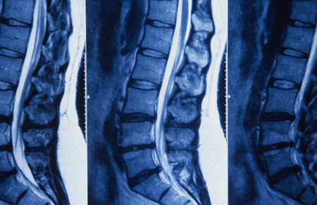 juxtaposing: X-ray of human spine, (multiple image) LANG_EVOIMAGES