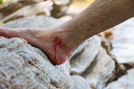 Wounded leg