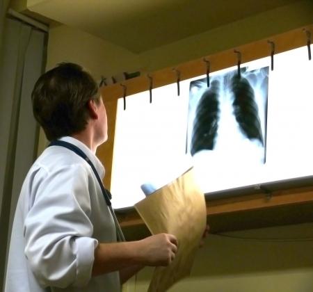 chest xray: doctor examines xray film Stock Photo