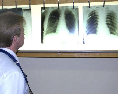 surgeon examines an xray photo
