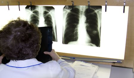 surgeon examines an xray Stock Photo - 2596253