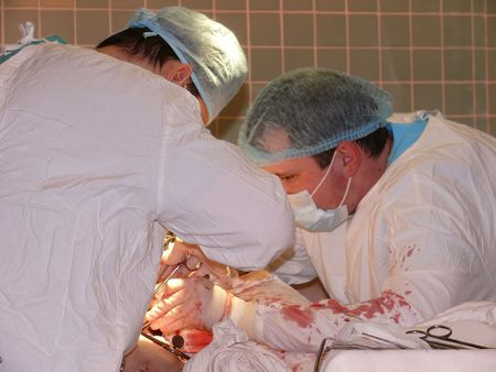 surgery and surgeon's work: a hard case operation Stock Photo - 2596268