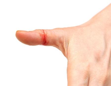 wound: bleeding wound on white