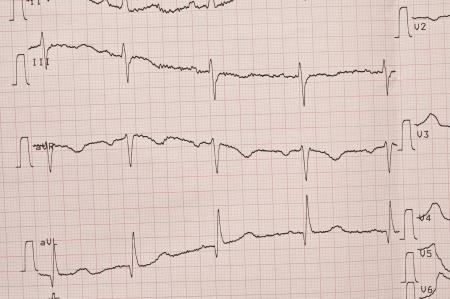 cardioid: Cardiograma. ECG muestra los latidos del coraz�n