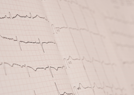 Detail of an electrocardiogram in paper  photo