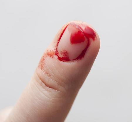 prick: Finger prick