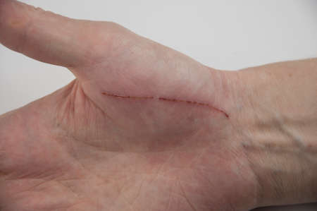 Hand of man injured wound from accident, insurance concept Stock Photo