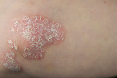 Acute psoriasis on the elbows is an autoimmune incurable dermatological skin disease. Large red, inflamed, flaky rash on the elbows. Joints affected by psoriatic arthritis