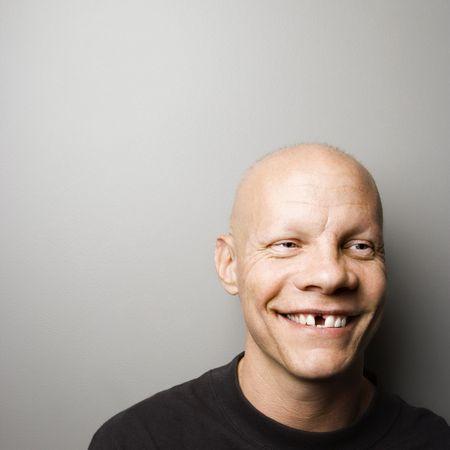 누락 된 치아와 mid-adult 백인 남성 초상화.