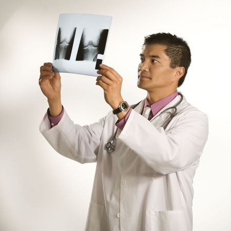 examine: Asian American male doctor examining x-ray.