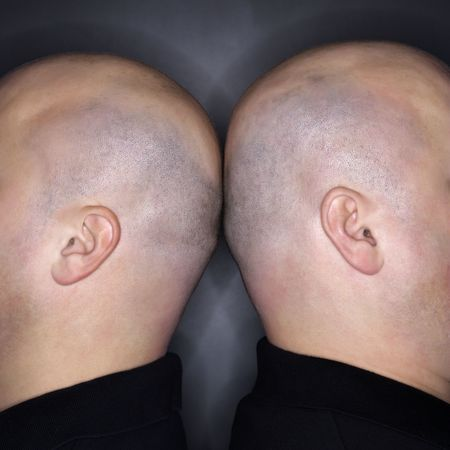 kinship: Close up of Caucasian mid adult identical twin bald men standing back to back.