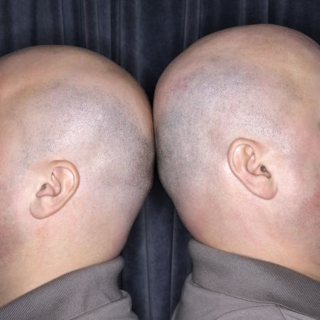 kinship: Close up of Caucasian bald identical twin men standing back to back. Stock Photo