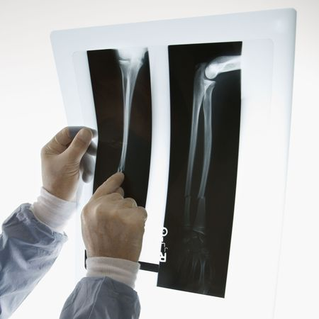 Mid-adult Caucasian male doctor pointing at an x-ray. Stock Photo