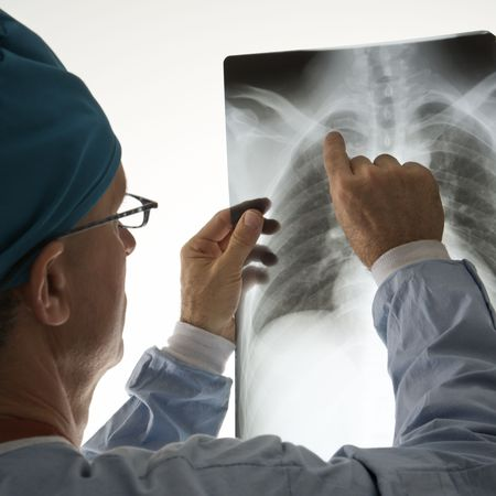 Mid-adult Caucasian male doctor pointing at a bone on a x-ray. Stock Photo - 2389004